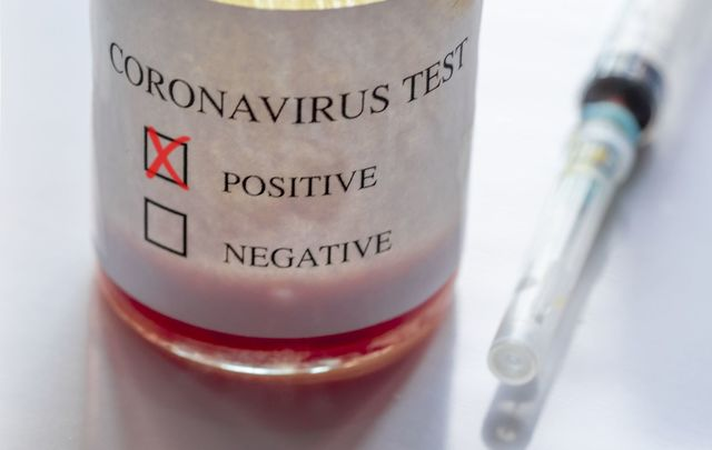 "Donald Trump called the coronavirus a ""hoax"" and said the US has the coronavirus ""under control."""