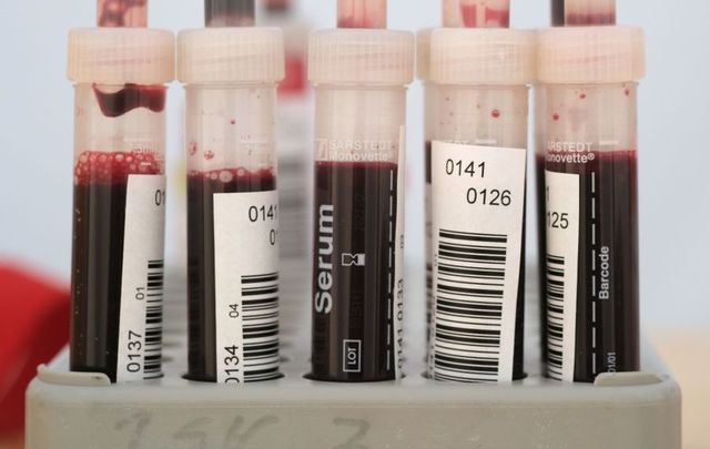 COVID-19: The FDA announced it was altering restrictions on blood donations by gay and bisexual men.