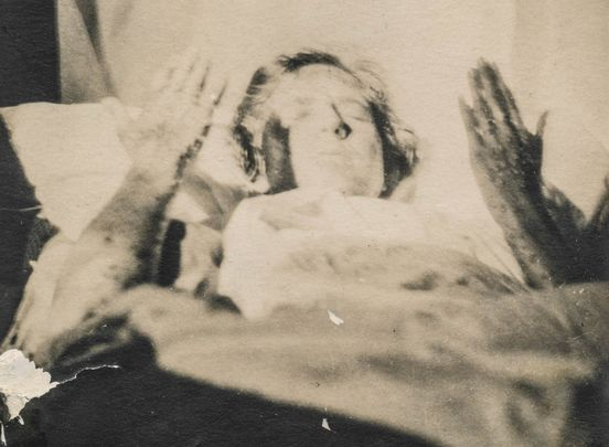 "A photograph of a smallpox victim: with the caption ""Lydia Jane had smallpox\""."