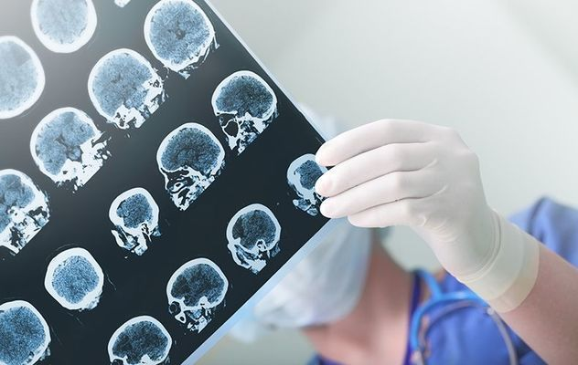 The drug aducanumab has been approved by the FDA for the treatment of Alzheimer\'s.