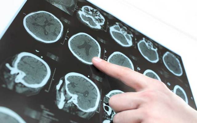 CT scan of brain.