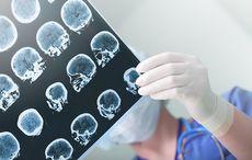 Thumb_alzheimers_brain_scan_doctor_istock