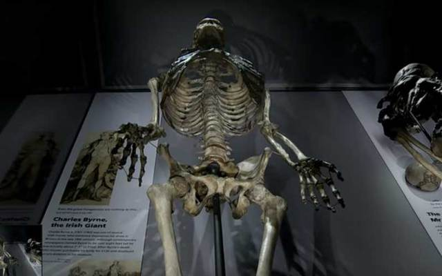 """The towering skeleton of \""""Irish Giant\"""" Charles Byrne at the Hunterian Museum at the Royal College of Surgeons in London."""