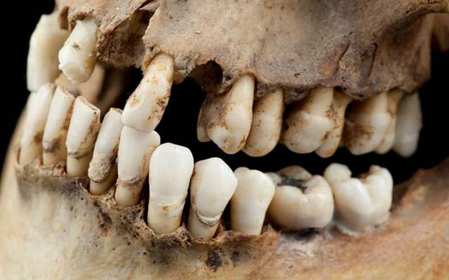 A skeleton with rotten and missing teeth.