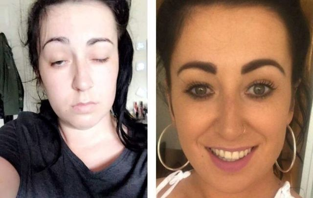 Stephanie Farnan\'s selfie helped provide a timeline for doctors responding to her stroke.
